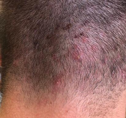 Comment soigner l'acné du cuir chevelu?